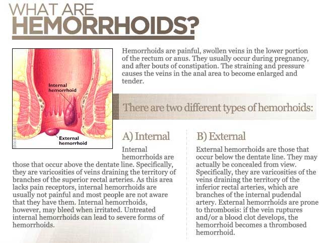 what is hemorrhoids